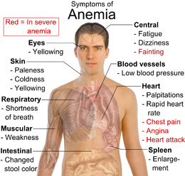 Nursing Diagnosis and Nursing Interventions for Anemia